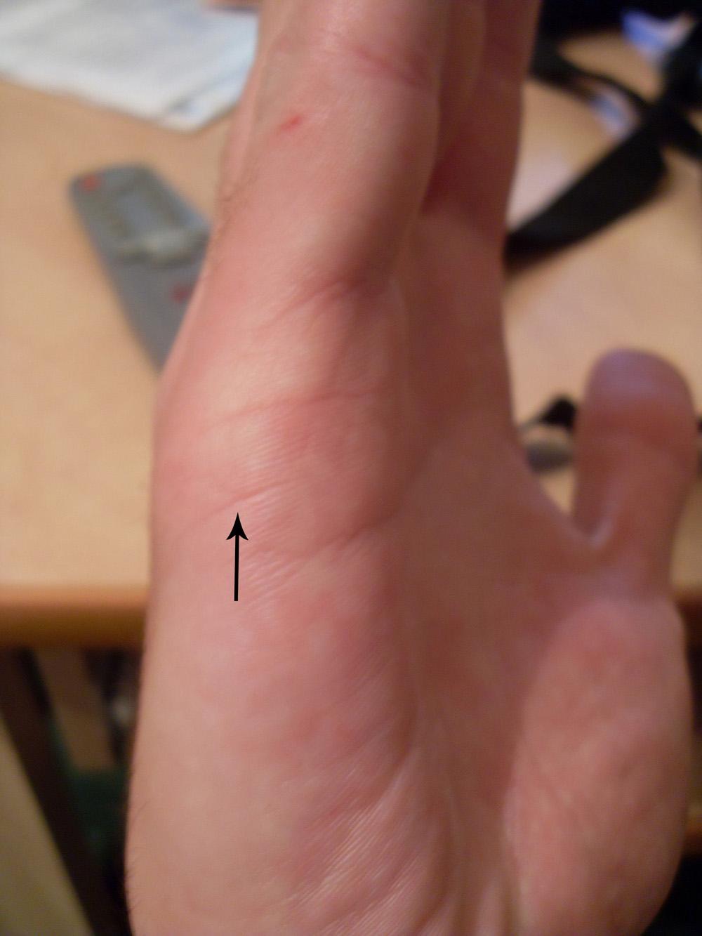 аллергия на правой руке психосоматика