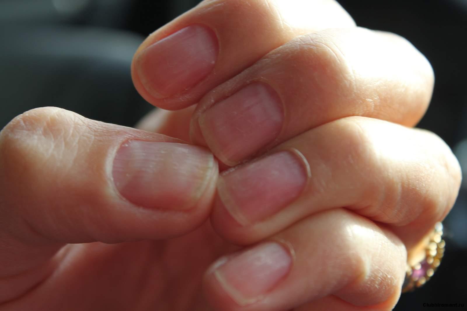На ногтях красные полоски что это значит фото